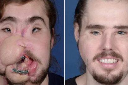 El impresionante trasplante de cara que ha dado una segunda oportunidad a un joven 26 años