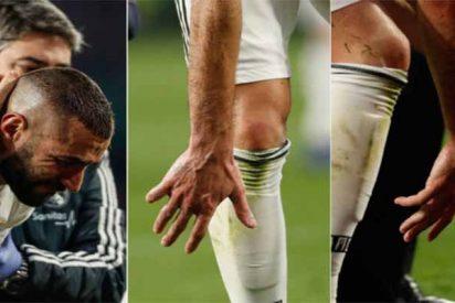 Real Madrid: El dedo roto de Benzema obliga a Florentino a fichar un 9
