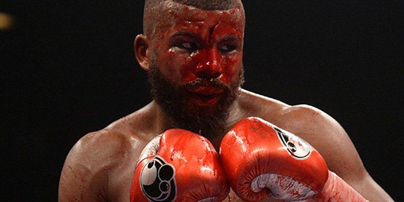 Pierde una sangrienta pelea de boxeo tras sufrir este impactante corte en la frente