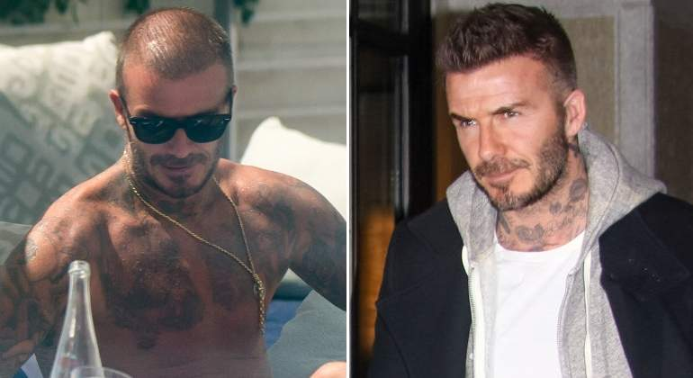 David Beckham combate la alopecia con injertos de cabello