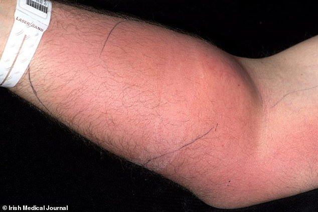 Se inyecta semen en el brazo para curarse la espalda.... todo sale muy mal