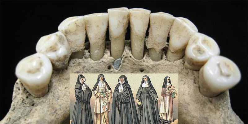 El secreto que revela una mancha azul en los dientes de una vieja monja