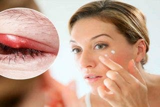 """Mujer en estado semicomatoso después de usar crema para la piel """"contaminada"""""""
