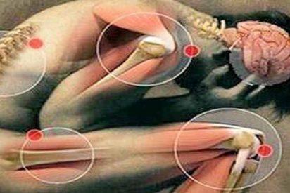 Investigadores descubren una nueva enfermedad esquelética rara