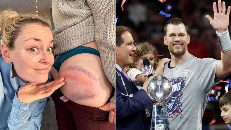 Lindsey Vonn muestra las impactantes secuelas de su caída y se compara con Tom Brady