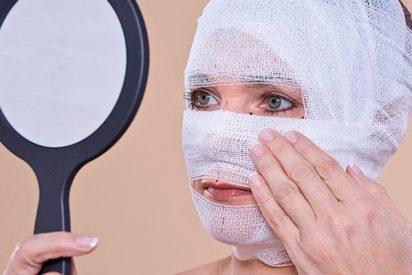 ¡Mujer entra en quirófano para una liposucción y sale con una nariz nueva!