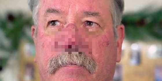 El increíble tamaño que obtuvo su nariz por una afección que la medicina estadounidense pudo resolver