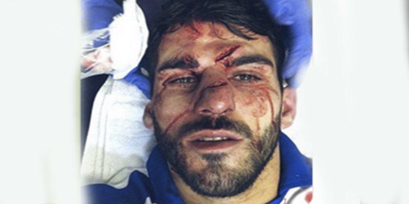 Así quedó la cara de este futbolista tras sufrir un pisotón durante un partido