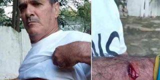 La lamentable jornada de represión y censura durante el referéndum constitucional en cuba