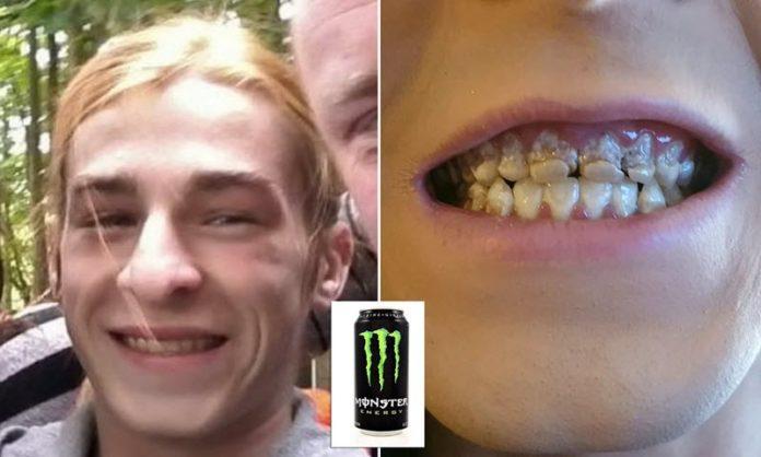 Pierde todos los dientes por tomar 6 latas diarias de bebida energética