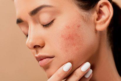 Piel: elimina los pequeños granos de la cara con estos superalimentos