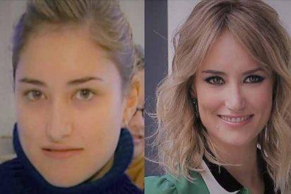 Asi era Alba Carrillo antes de pasar por la cirugía estética y operarse la cara