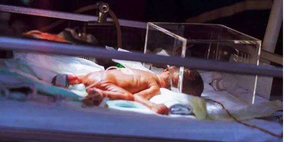 El enfermero del año: Adopta a un bebé deforme, enfermo y abandonado