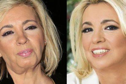 """Carmen Borrego enseña su nueva cara a sus compañero de 'Sálvame': """"Es inadmisible"""""""