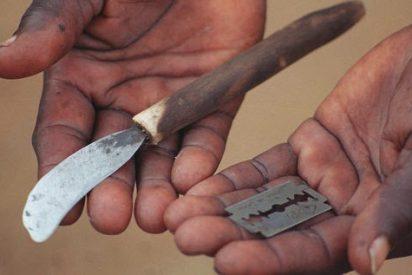"""Una mala circuncisión le obliga a una vida sin sexo porque """"casi no tiene pene"""""""