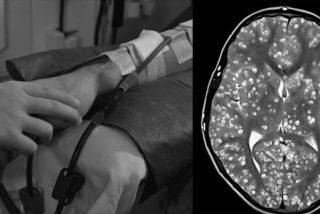 Un joven muere por culpa de una plaga de gusanos en el cerebro