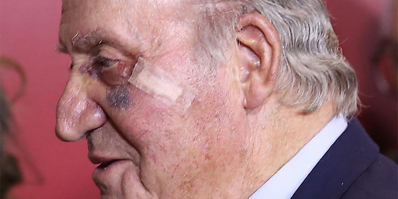 Todas las mentiras sobre la salud del Rey Juan Carlos y su moratón en un ojo