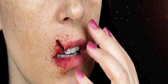 Una madre furiosa rompe de un cabezazo el labio a la profesora de su hijo