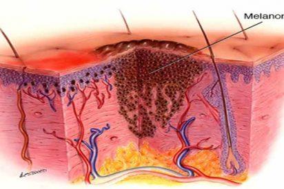 Una bacteria del agua del mar es clave en un nuevo tratamiento contra el melanoma