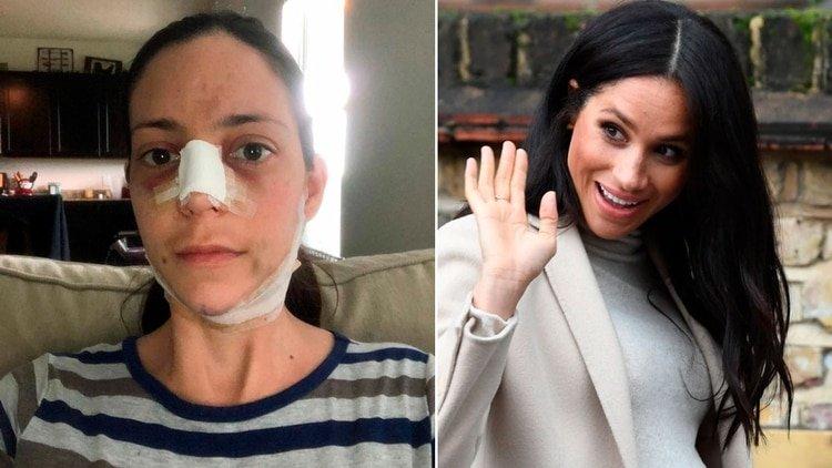 Así luce la mujer que pagó 22.500 dólares en cirugías plásticas para parecerse a Meghan Markle