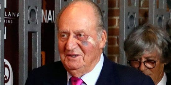 Toros: El Rey Don Juan Carlos reaparece con un moratón y una herida bajo el ojo izquierdo