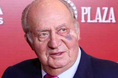 El rey Juan Carlos I reaparece en público con un tremendo moratón en un ojo
