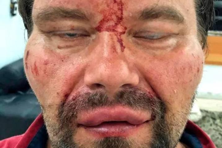 Los matones de Nicolás Maduro arrestan y golpean al periodista polaco Tomasz Surdel