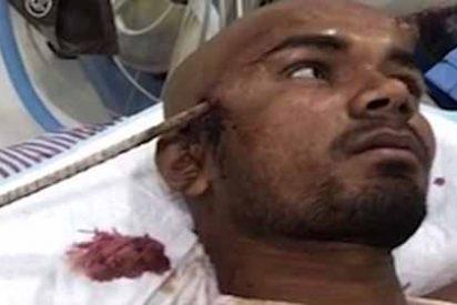 El escalofriante accidente laboral que por poco le deja sin vida: una barra de hierro le atravesó la cabeza