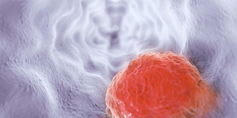 Descubren que una medicina ya de venta en farmacias podría bloquear la propagación del cáncer