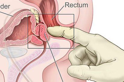 Los medicamentos para la próstata aumentan el riesgo de desarrollar diabetes tipo 2