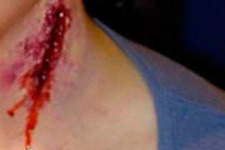 Una británica de 19 años le corta el cuello a una amiga en una discoteca de Magaluf