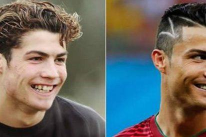 La metamorfosis de Cristiano Ronaldo: ortodoncia, lipoescultura y cirugía facial