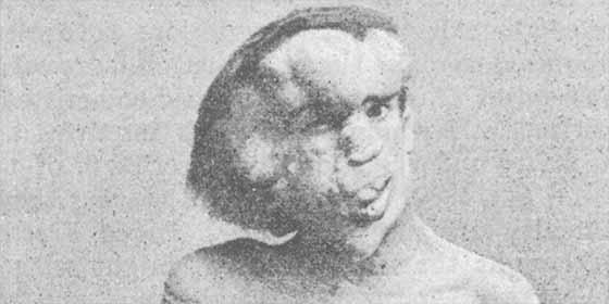 """Se burlaron, lo humillaron, pero Joseph Merrick, el """"Hombre elefante"""" nos escribió un poema y una lección"""