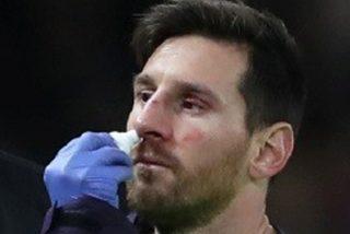 Messi sufre una herida facial tras un fuerte choque con Smalling del Manchester United