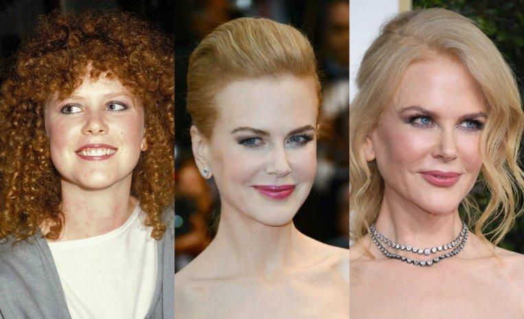 Fotos: El impactante antes y después de algunas famosas