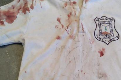 """Bullying: """"Con mis hijos nadie se mete"""", el mensaje de una madre al mostrar la camisa ensangrentada de su hijo"""