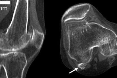 Así es fabella, el hueso perdido en la evolución que está reapareciendo