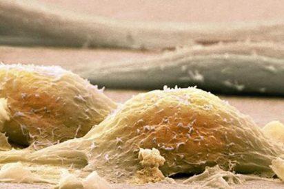 Todo lo que debes saber sobre el Sarcoma: ese bultito raro que aparece de repente