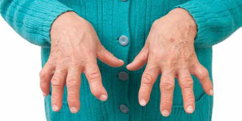 La discapacidad en la artritis reumatoide aparece uno o dos años antes del diagnóstico de la enfermedad