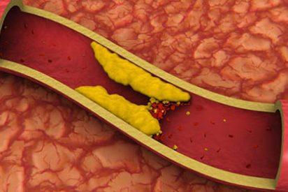 Un tercio de los pacientes que toman estatinas no alcanzan niveles saludables de colesterol 'malo'