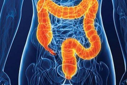 Investigadores identifican nueva diana terapéutica para el cáncer de próstata metastásico