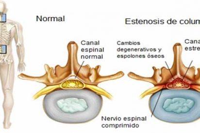 Estenosis de canal: El 95% de los hombres y el 80% de las mujeres mayores de 65 años padece el 'síndrome del escaparate'