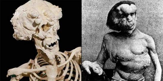 Encuentran los restos del 'Hombre Elefante' en una tumba anónima de Londres