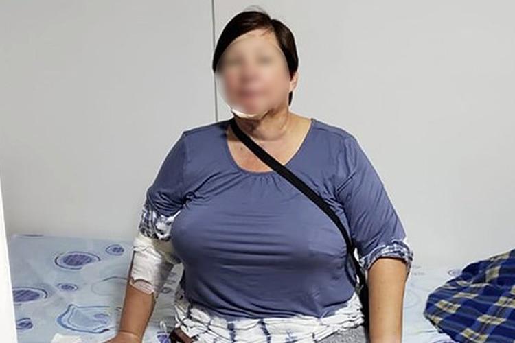 Entra al quirófano por una liposucción y terminó con gangrena en el abdomen