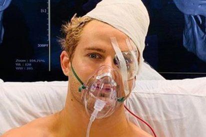 Este brutal nocaut envía a un luchador de MMA directo al quirófano con ocho fracturas en la cara