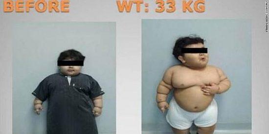 Los niños que reciben burlas por su peso aumentan su masa corporal un 33% más cada año