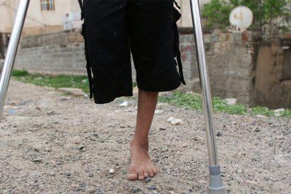 ¡Se amputa una pierna con una navaja tras quedar atrapado en una máquina!