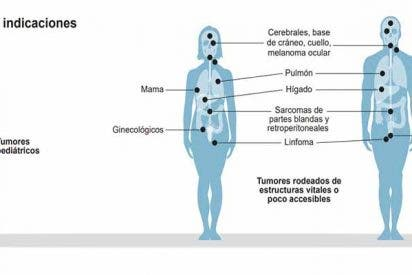 La protonterapia produce menos efectos secundarios que la radioterapia tradicional