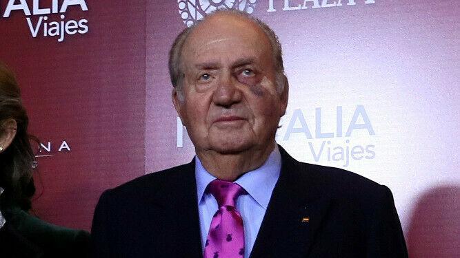 El real, crudo y penoso motivo por el que el Rey Juan Carlos se retira para siempre