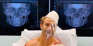 Vídeo: El feroz golpe que dejó a un luchador con ocho fracturas en el rostro